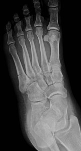 Lisa's fracture, the fifth metatarsal (left-most bone)